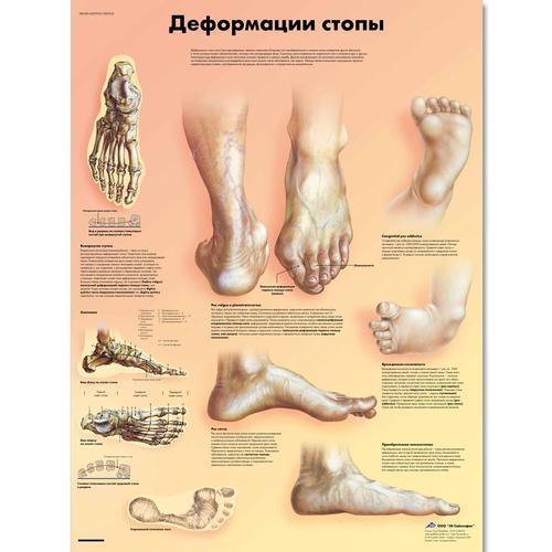 dolore sotto pianta del piede metatarso