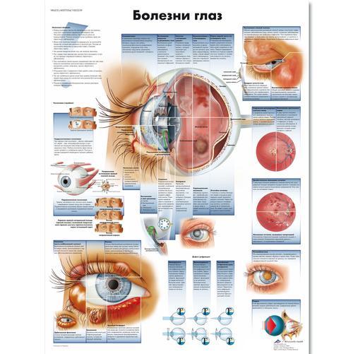 офтальмологические заболевания глаз