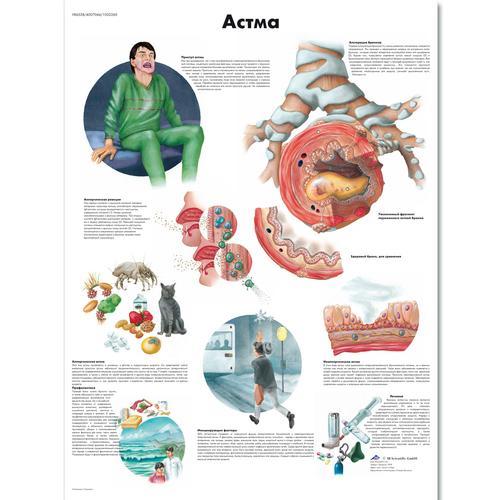 epub Therapeutic Strategies in Asthma: Modern